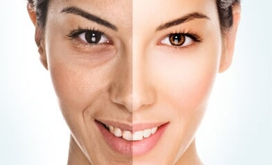 Dermal Fillers vs Botox Comparison: Main Facts of Confrontation