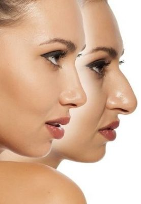 Pros of Nonsurgical Rhinoplasty